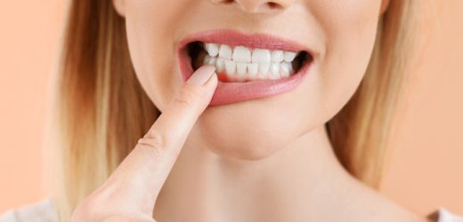 What's Gum Disease?